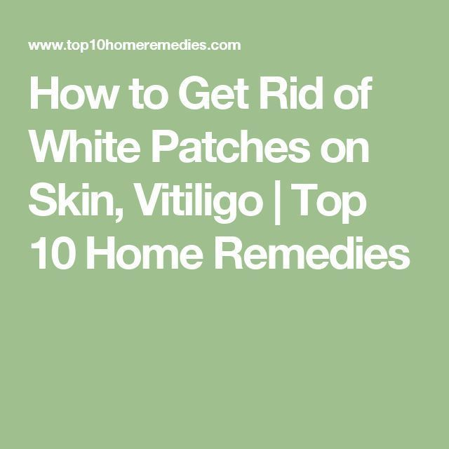 How to Get Rid of White Patches on Skin Vitiligo | Top 10 Home…