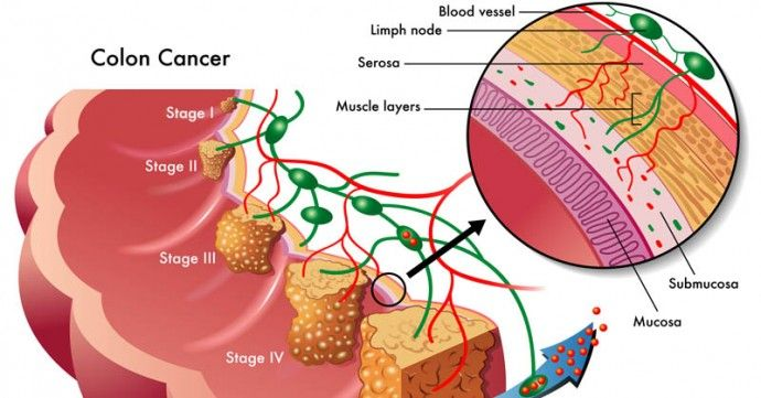 4 foods to prevent colon cancer