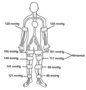 Koven Surgical & Vascular Ultrasound Doppler Systems