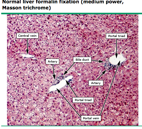 Liver Histology Labeled Liver Histology Labeled Normal