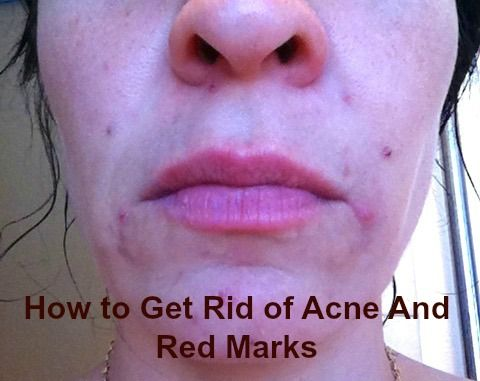 How To Get Rid Of Marks Left By Acne