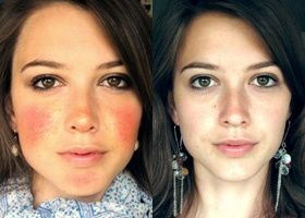 For anyone living with symptoms of rosacea.