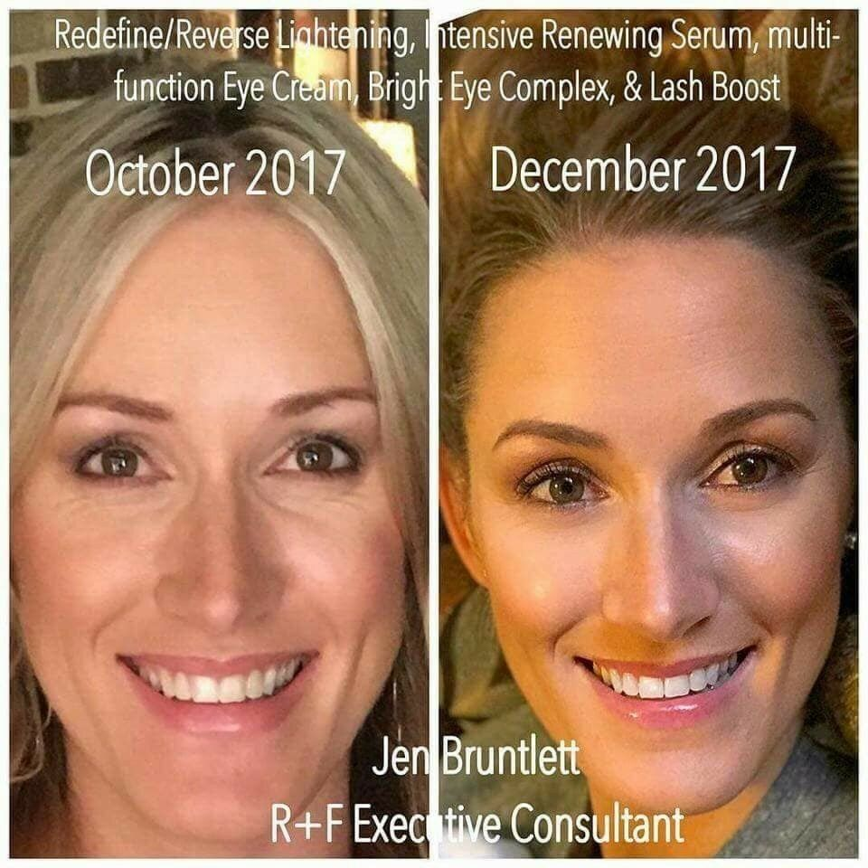 Unhappy With Wrinkles Around Your Eyes And On Your Face Start A New Skincare Routine With Rodan Fields Skincare Rodan And Fields My Rodan And Fields Rodan