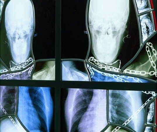 green design, eco design, sustainable design, Wim Delvoye, Chapel series, stained glass, x-ray stained glass, recycled x-rays, recycled mate...
