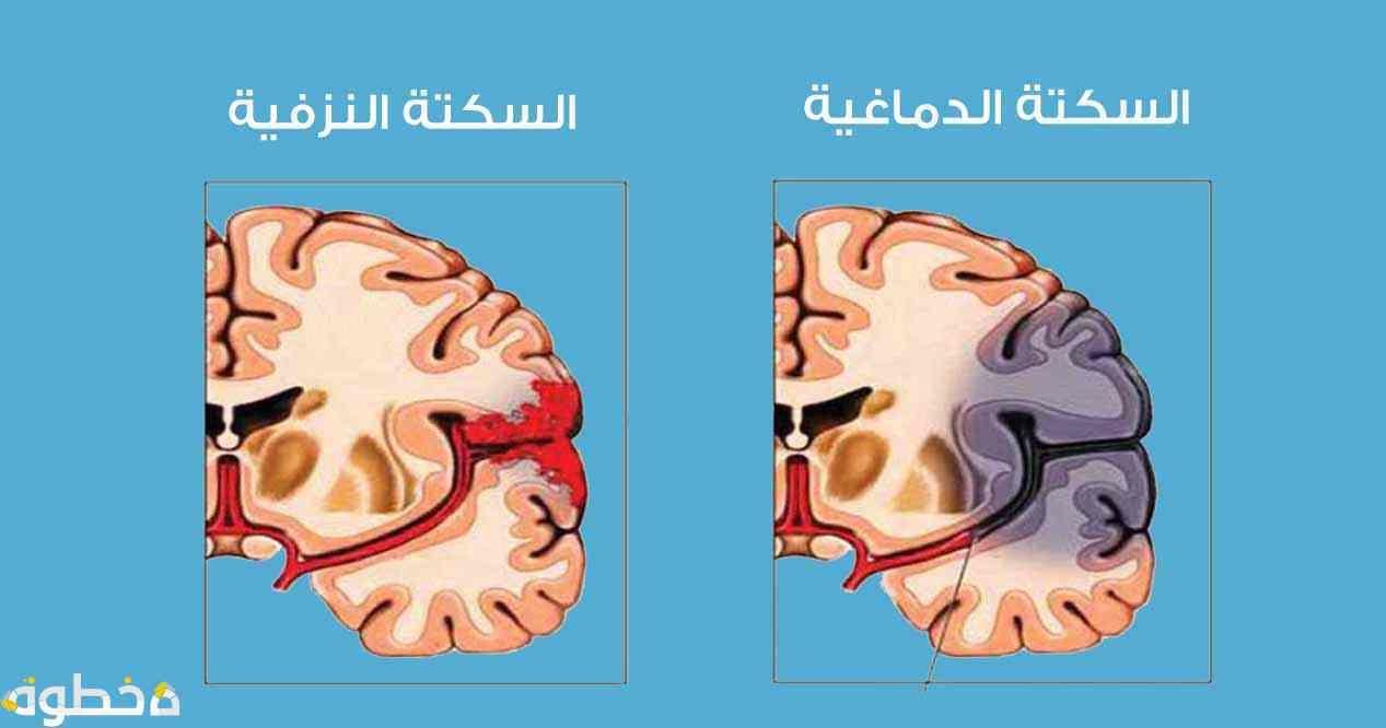 عوامل الإصابة بالسكتة الدماغية م تعددة منها إرتفاع ضغط الدم ونسبة الكوليستيرول في الدم التدخين السمنة التي تساهم بنسبة كبيرة في حدوث السكت Pandora Screenshot