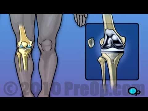Knee Replacement Surgery PreOp® Patient Education