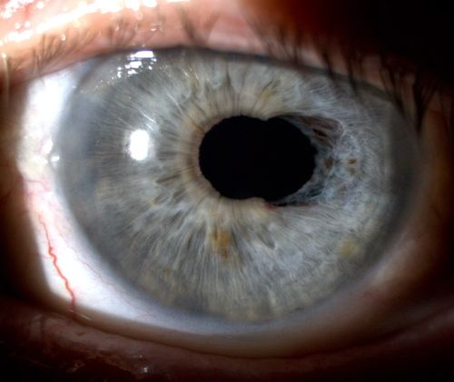 Ovalization Of The Pupil Due To A Sphincter Of The Iris Following