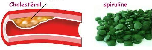 La spiruline : l'anti-cholestérol Yes ! sous contrôle médical mon LDL (mauvais cholésterol) est passé de 1.60g à 1.00g en 6 mois... Et mes athéromes fémoraux ont diminué significativement...