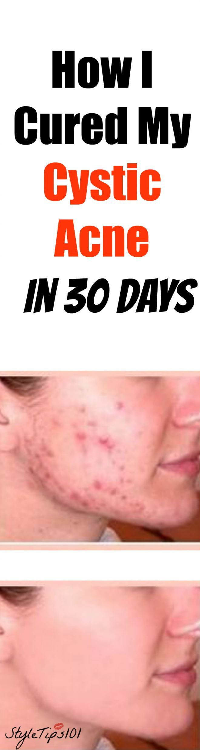how-i-cured-my-cystic-acne-in-30-days #naturalskincare ...