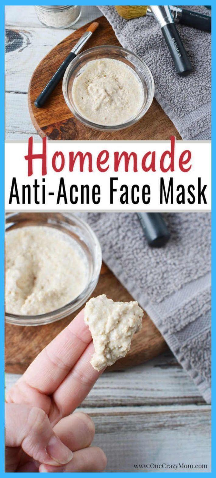 Homemade Face Mask for Acne  Diy Acne Face Mask  Honey Face Mask For Acne  Homemade Face M  Homemade Face Mask for Acne  Diy Acne Face Mask  Honey Face Mask For Acne  Hom...