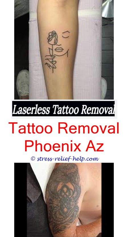 does tattoo removal hurt how do i remove my tattoo at home - how to ...