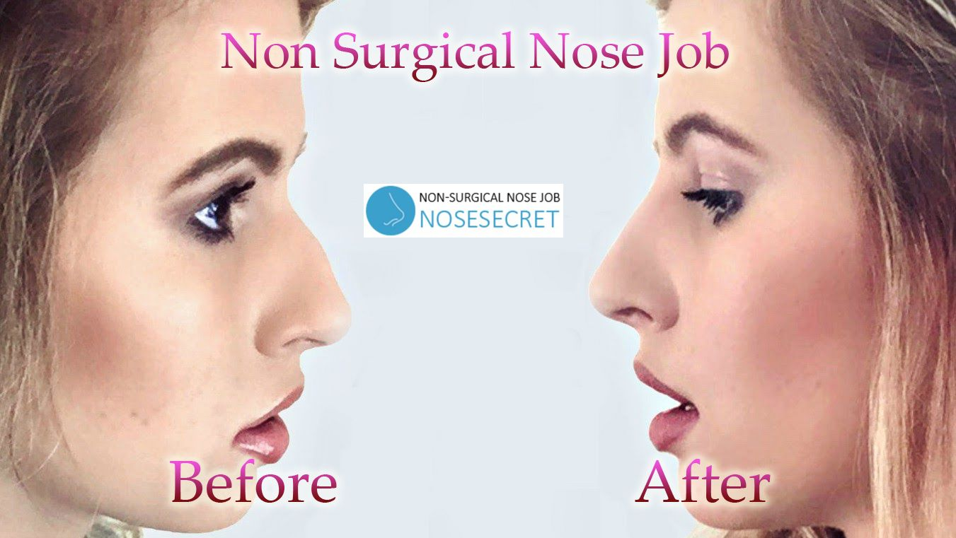 Nose Lift Without Surgery It is safe to say that you are