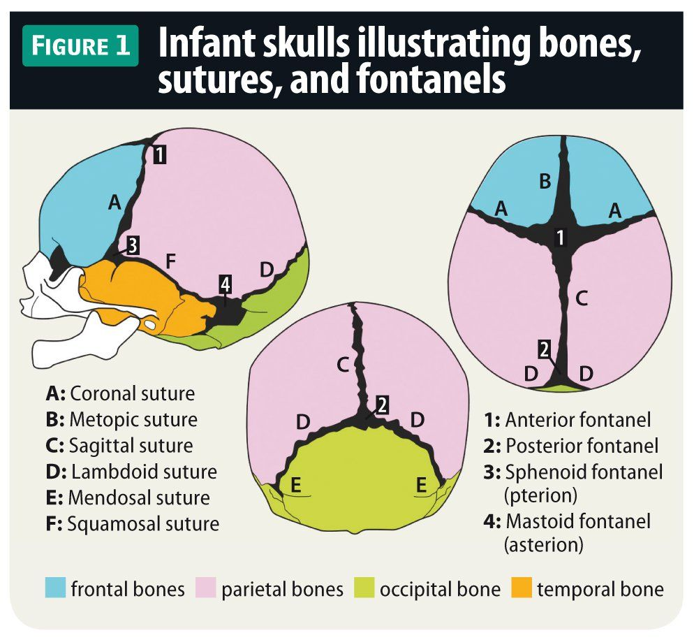 Evaluating Fontanels In The Newborn Skull Contemporary Pediatrics