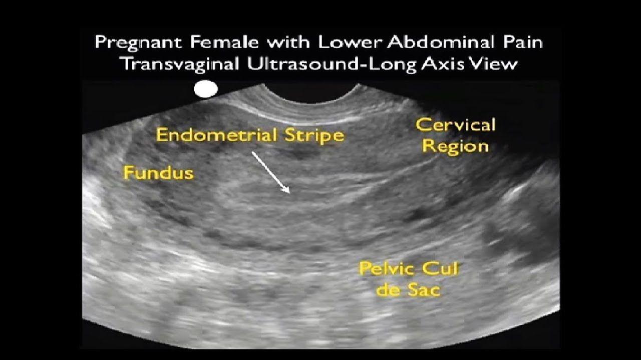 Ectopic Pregnancy Ultrasonography - Emergency Ultrasound   female ...