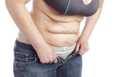 Tres Pasos para Eliminar la Celulitis del Abdomen de Manera Fácil y Sorprendente