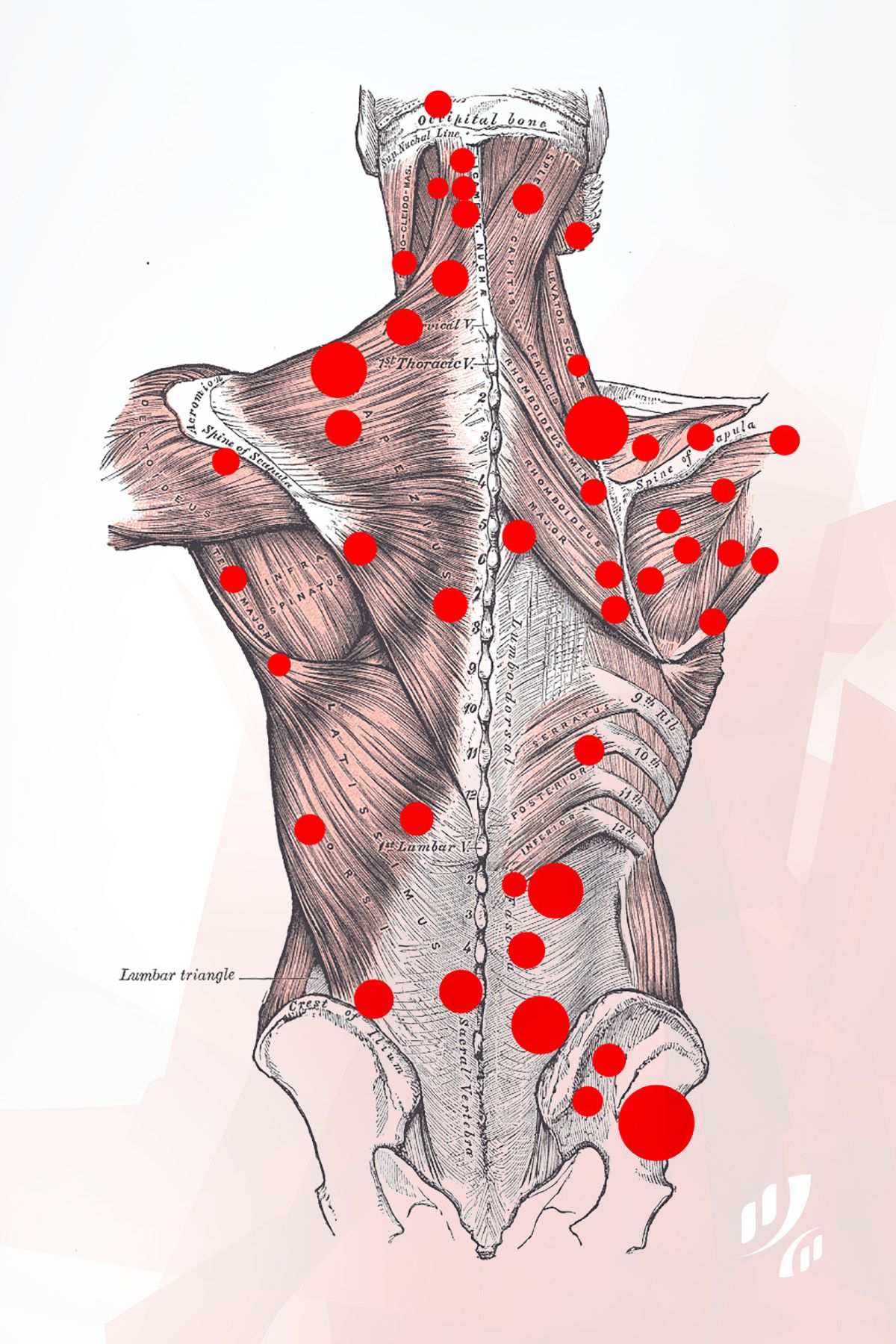 Back Trigger Points These Are Common Areas Where People -9450