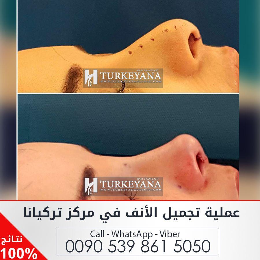 إذا كنت تعاني من مشاكل بالتنفس مشكلة الشخير أو من مظهر أنف غير ملائم لشكل وجهك فالحلول المثلى لعمليات الأنف نقدمها لكم بأفضل Surgery Clinic Cosmetic Surgery