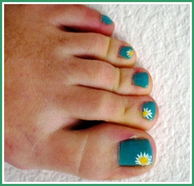 Toe Nail Designs At Home : Toe Nail Designs Spring, toenail designs ...