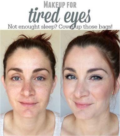 f7dc2282b9aa73ee5159ac45759cdb38 - How To Get Rid Of Tired Looking Eyes Naturally