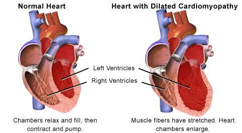 pictures of cardiomyopathy | pictures of a normal heart and a, Skeleton