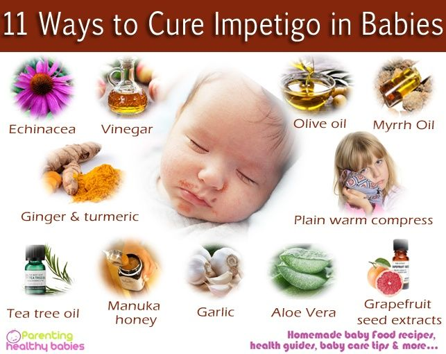Natural Remedies For Uti In Babies