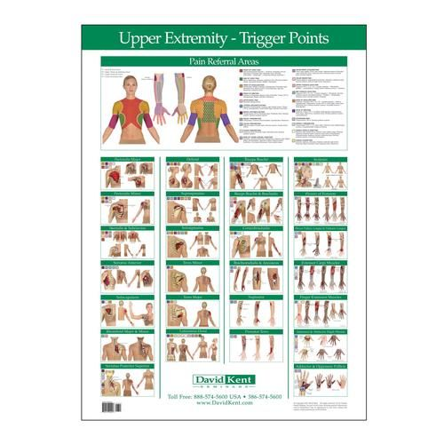 trigger point release chart Car Tuning | Referred pain | Pinterest