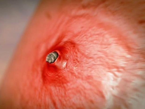 Shockingly Creepy Parasites Found Inside Human Body With Video ...