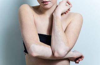 Delhi Laser Clinic: 10 Natural Remedies For Vitiligo Treatment