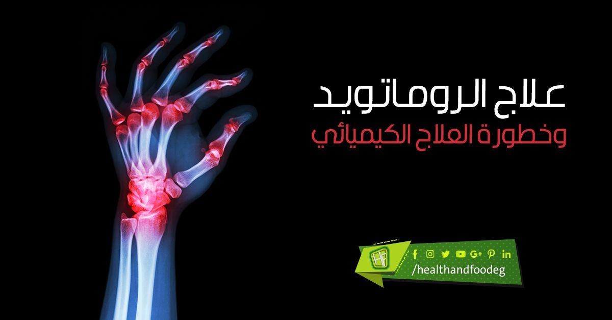 علاج الروماتويد وخطورة العلاج الكيميائي Okay Gesture