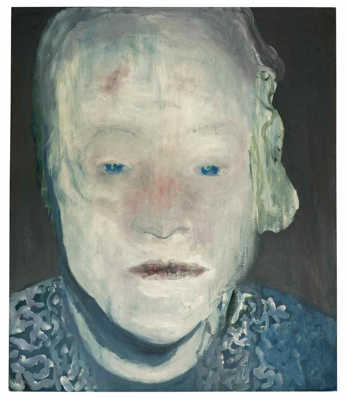 Marlene Dumas, The White Disease, 1985, oil on canvas, 49 3/16 x 41 5/16 in., Private Collection, © 2008 Marlene Dumas