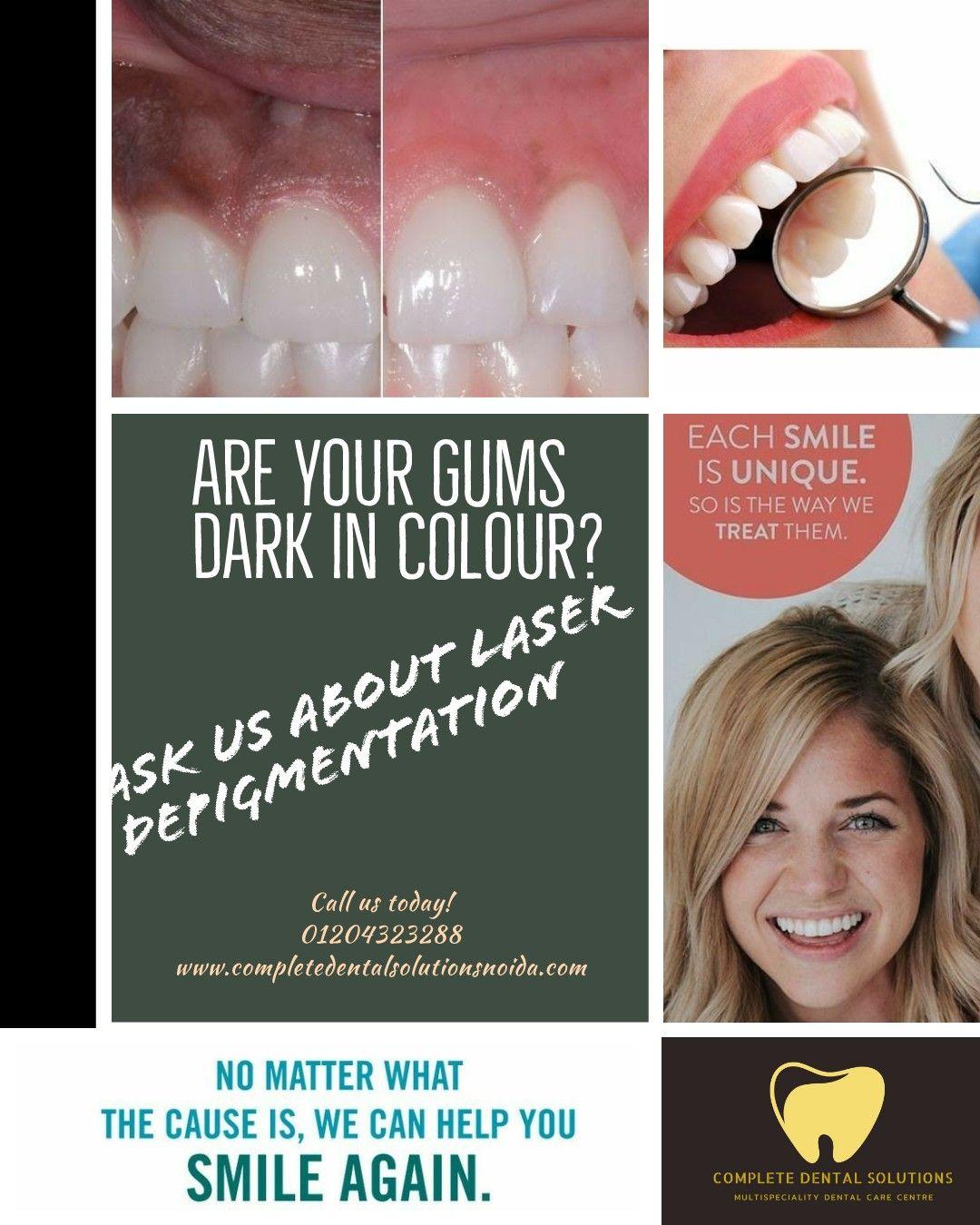 Gum Depigmentation Gum Health Dark Gums Dental Care Center