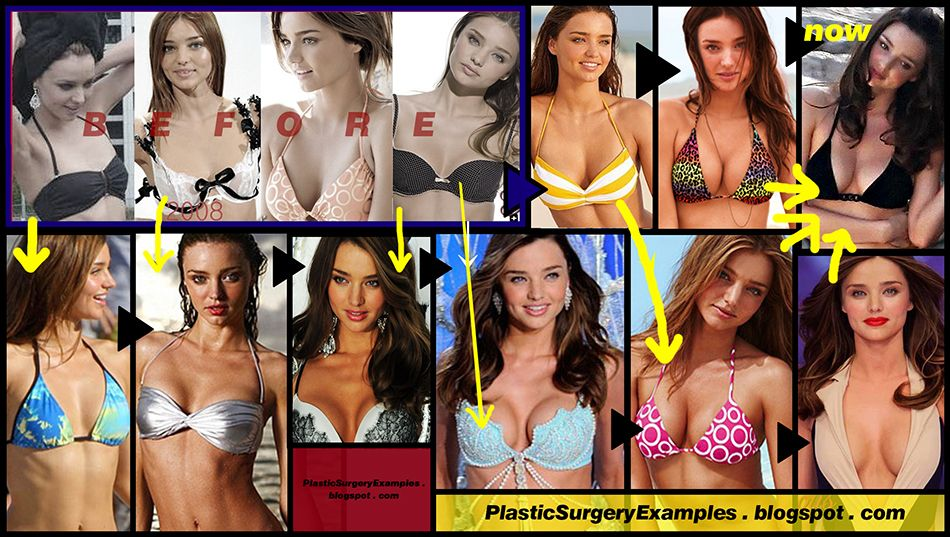 Miranda Kerr Before And After Plastic Surgery
