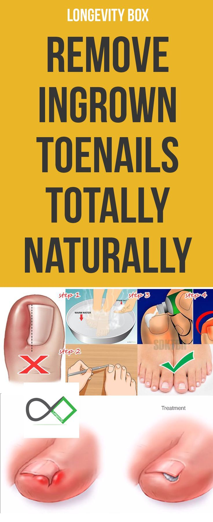 Heres how to get rid of ingrown toenails without surgery