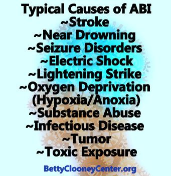 Typical Causes Of Acquired Brain Injury Abi Check Us Out At Http Bcftbi Org Brain Injury Seizure Disorder The Afflicted