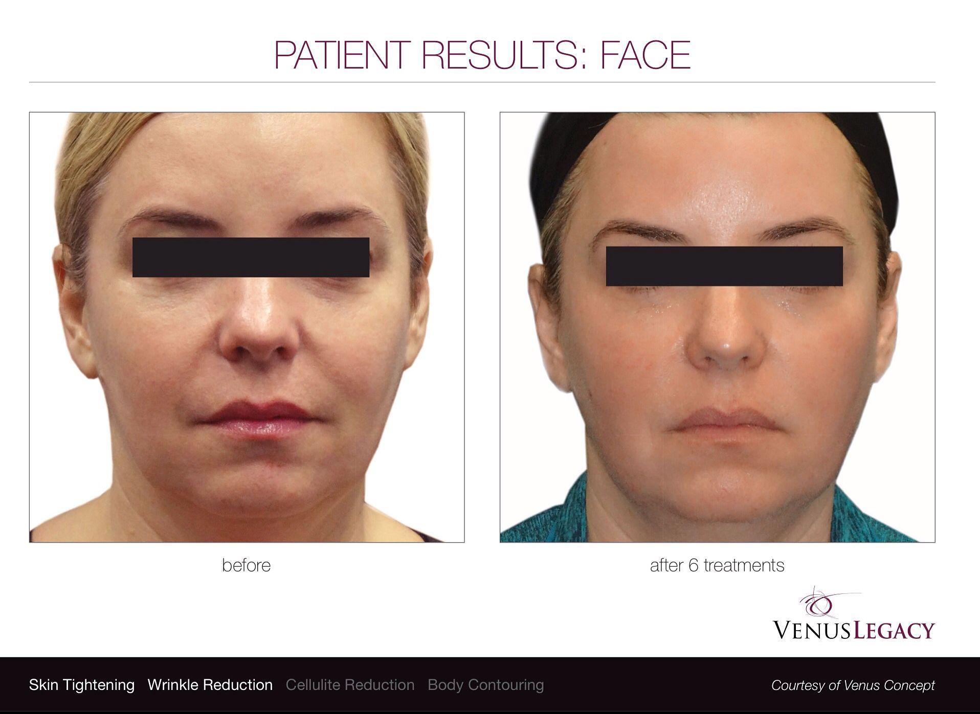 Facial skin tightening spas in connecticut