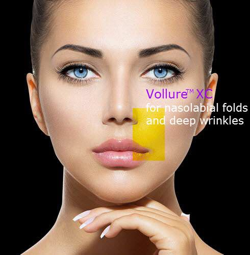 Juvederm Vollure XC fills in deep wrinkles and folds for 18months!