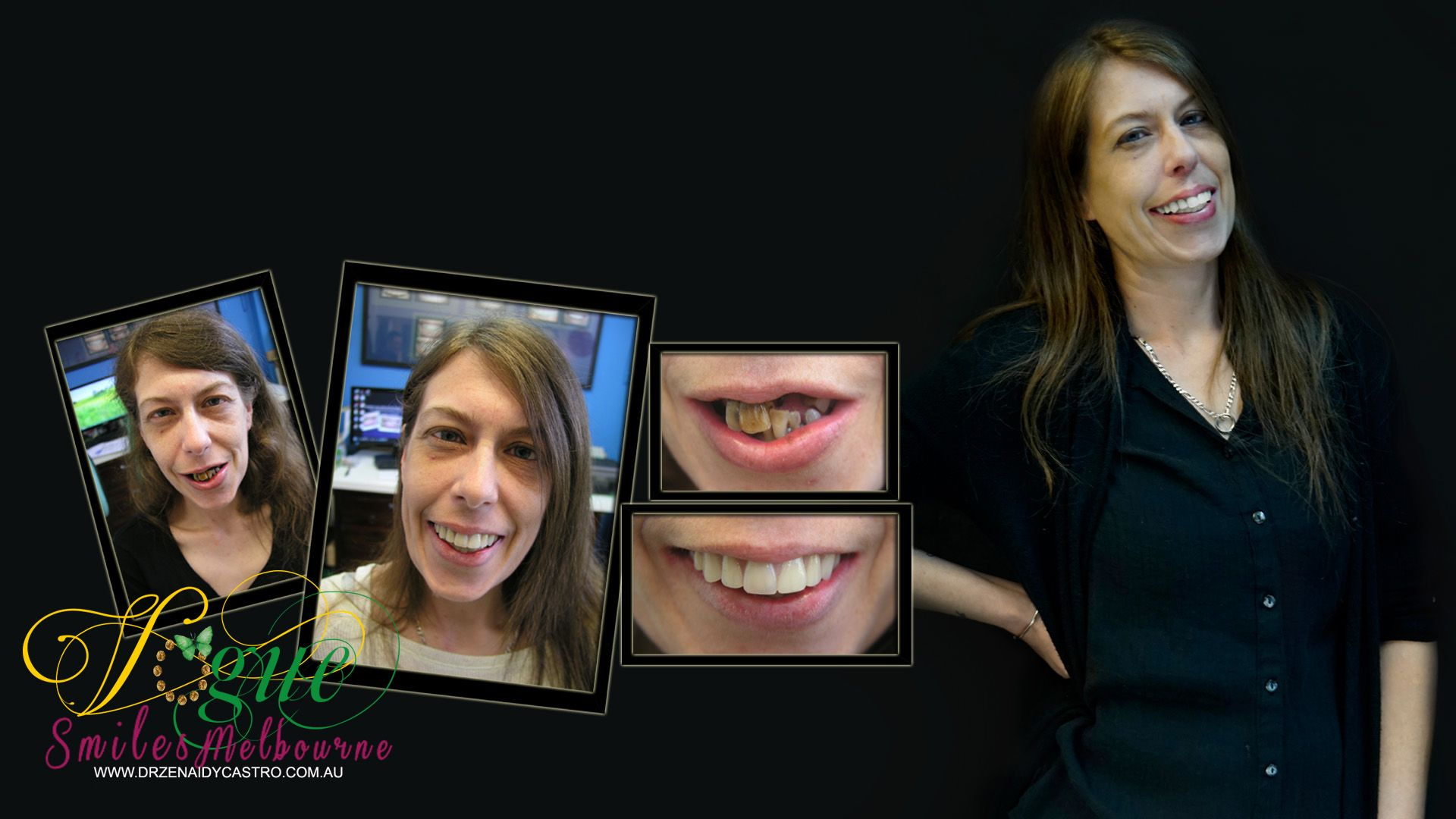 Tired of hiding your smile from others? Wish you could finally do something about your discolored, cracked, or missing teeth? Or, do you simply want to build upon your natural oral aesthetics? Vogue Smiles Melbourne can help you improve your smiles. https://heartandsoulwhisperer.com.au/the-artist/, http://drzenaidycastro.com.au/, http://melbournecosmeticdentistry.com.au/, /, https://heartandsoulwhisperer.com.au