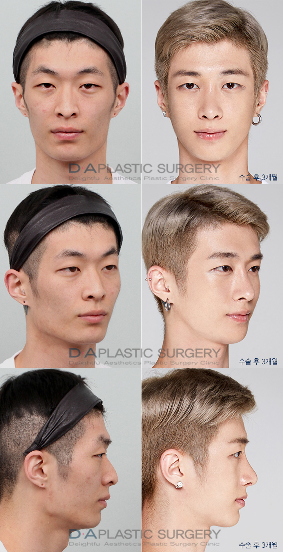 Brroooo I M Scared To Go To Korea Now Lol Trustissues Plastic Surgery Male Plastic Surgery Plastic Surgery Korea
