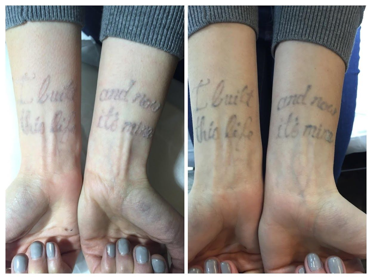 After one session the writing is disappearing. Tattoo removal at ...