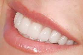 Get beautiful teeth from #teethwhiteningdubai from Kobonaty. http://www.kobonaty.com/en/index/category/dental-clinics-in-dubai
