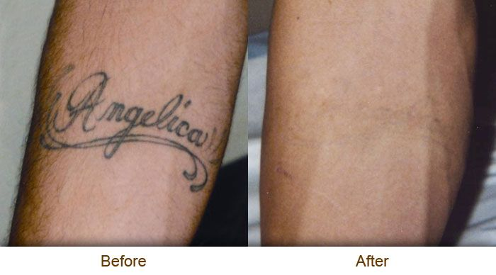 Removing Your Tattoo From Home Using a Tattoo Removal Cream ...