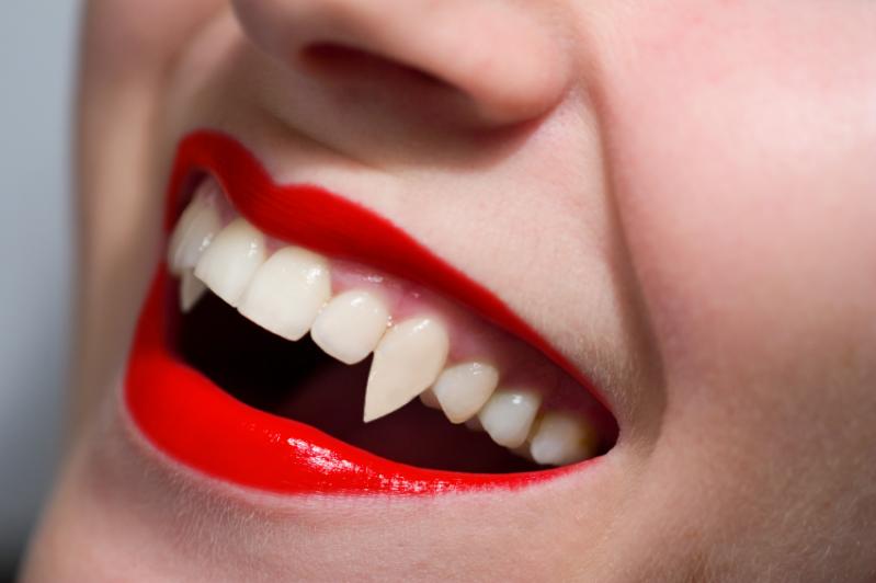 fake vampire teeth that look real |     something like