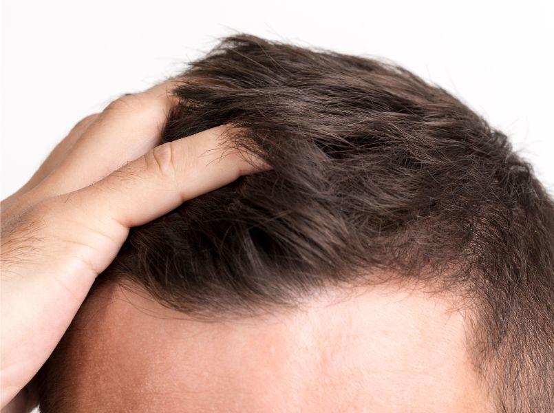 علاج تساقط الشعر عند الرجال In 2020 Hair Replacement Systems Unwanted Facial Hair Hair Loss Men