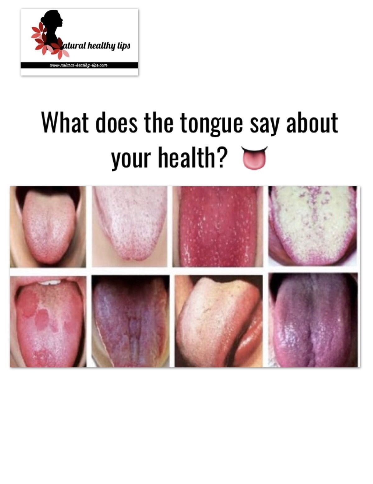 What does the tongue say about your health Healthy tips