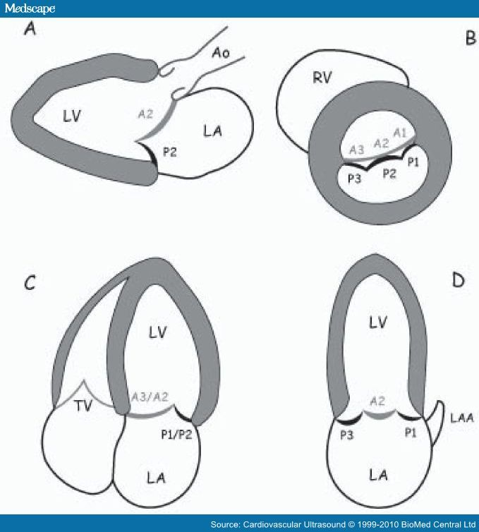 Preoperative Scallop-by-scallop Assessment of Mitral Prolapse using ...