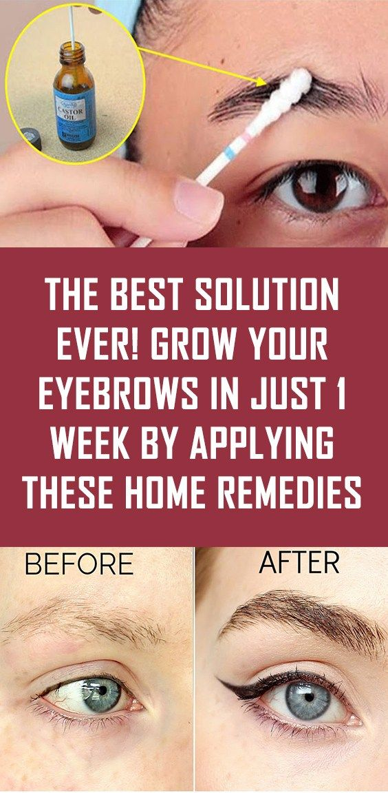 THE BEST SOLUTION EVER! Grow Your Eyebrows In Just 1 Week ...