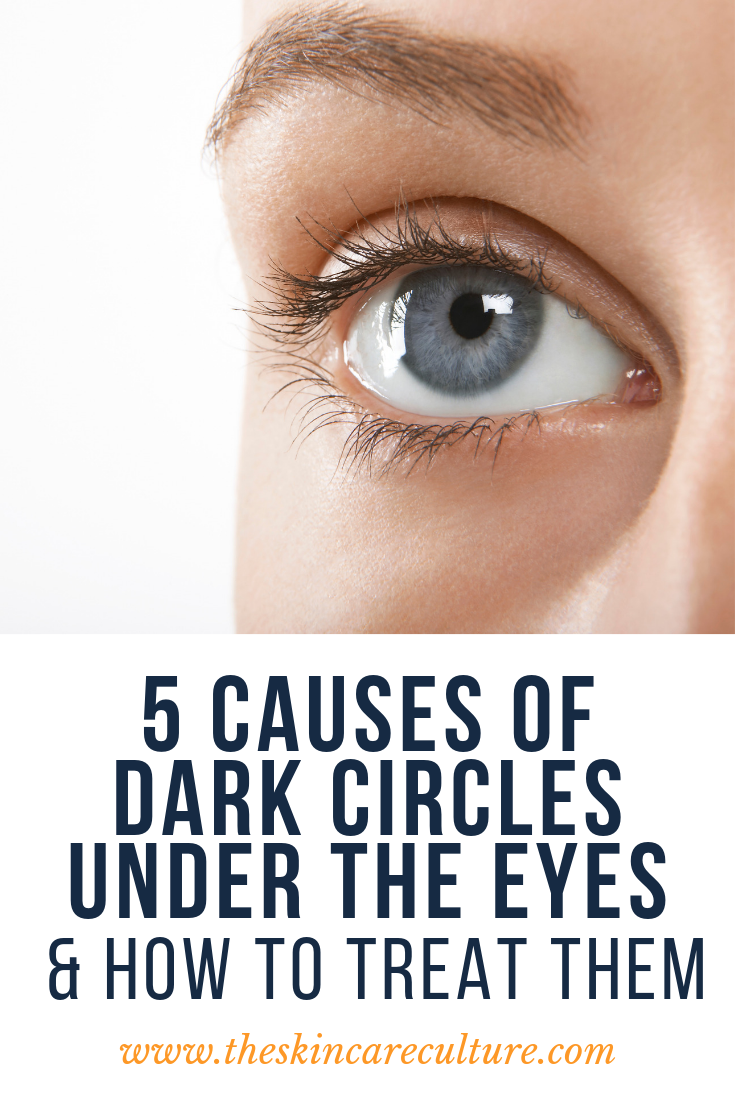 How To Get Rid Of Dark Circles Under The Eyes
