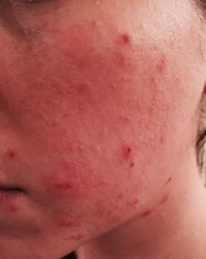 Pimple Scabs Or Acne Scabs How To Heal And Get Rid Of Scabs From