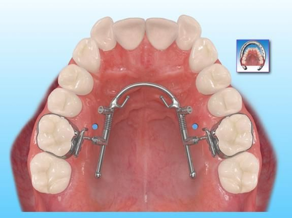 Bowman Distal Jet Google Search I Have An Overbite