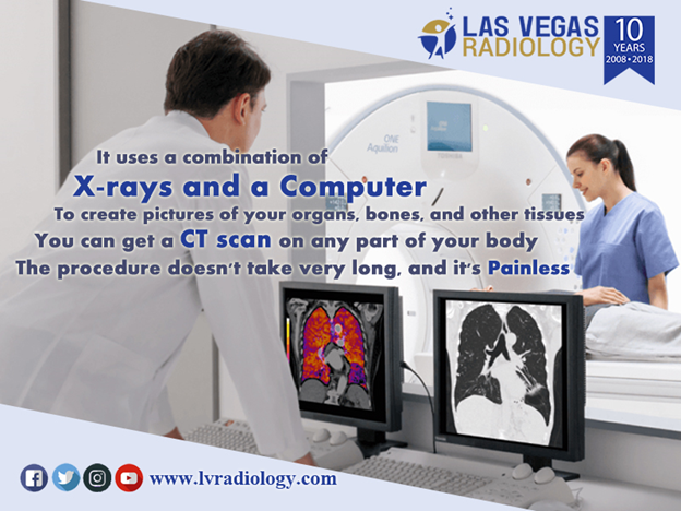 f83bd54959ded74b95f8a04458719607 - How Long Does It Take To Get A Ct Scan